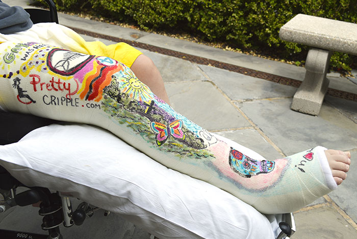 wheelchair disabled woman with art leg cast