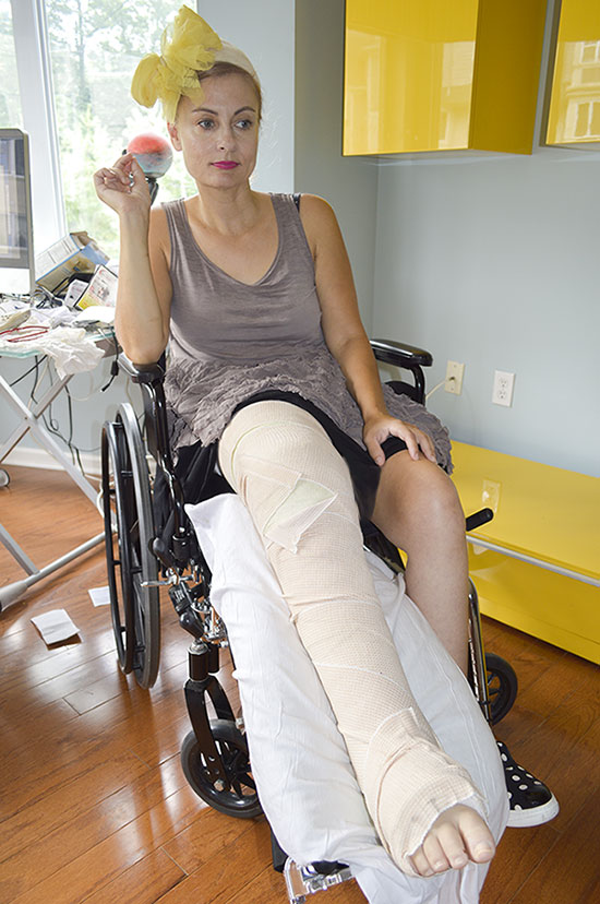 wheelchair woman in leg cast broken leg