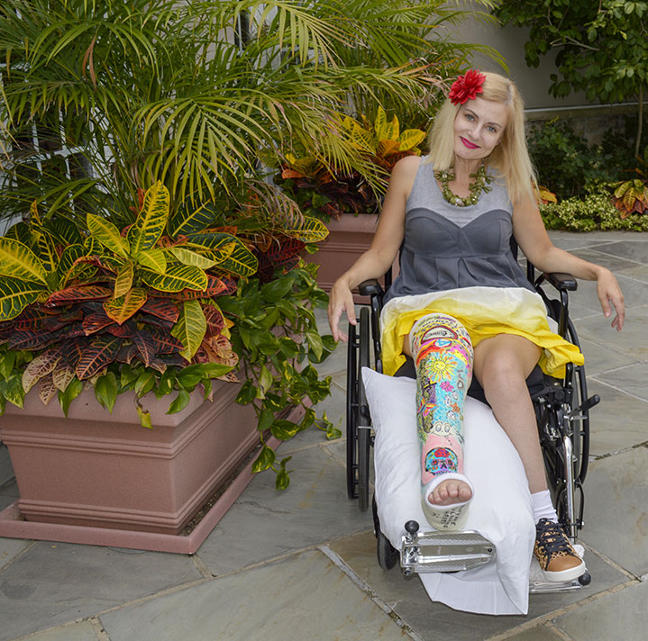 female in colorful art leg cast broken femur